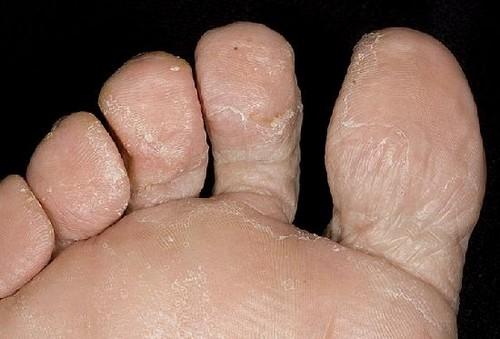 крем для ног между пальцами