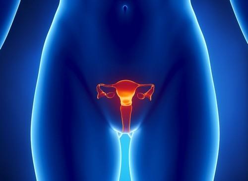 вагиноз
