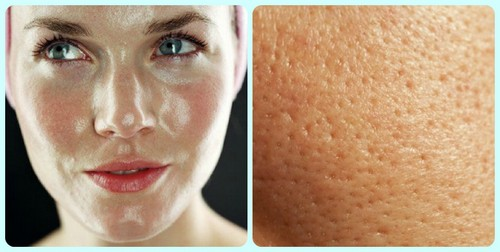 жирная кожа лица