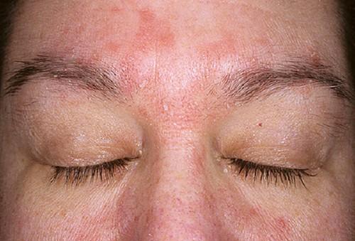 Крема от аллергии около глаз