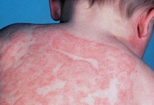 кожа при атопическом дерматите