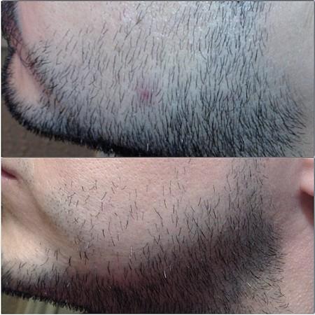 борода до и после использования крема для роста