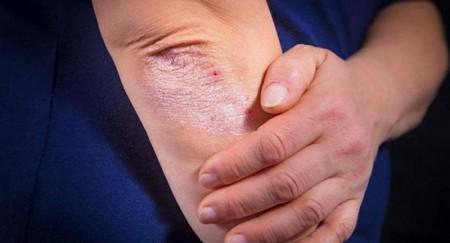 крем от болезней кожи