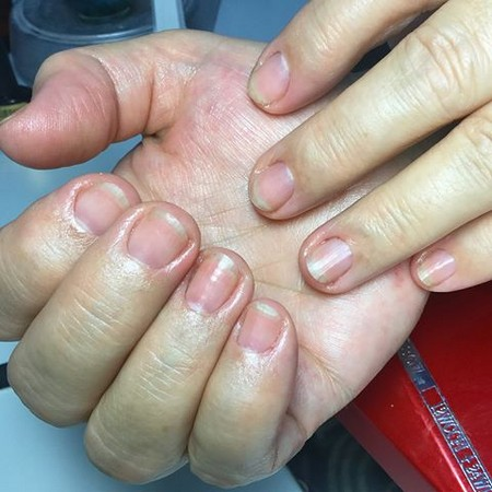 руки диабетика