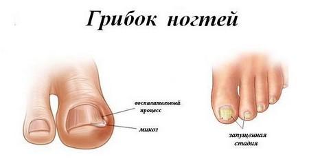 ногти в грибке