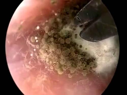 грибок уха